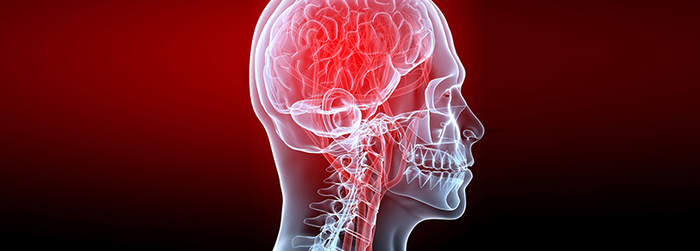 enfermedades cerebrovasculares sintomas.png