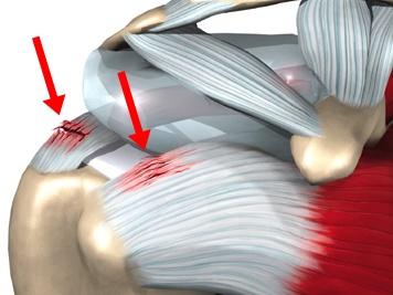 lesiones-futbol-americano-hombro.jpg