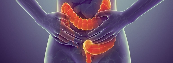 enfermedades digestivas cancer colorrectal.png
