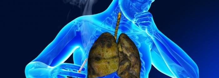 Las 7 enfermedades respiratorias más comunes