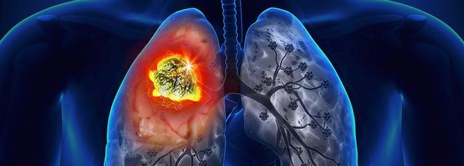 mejores_hospitales_de_mexico_cancer_de_pulmon.png