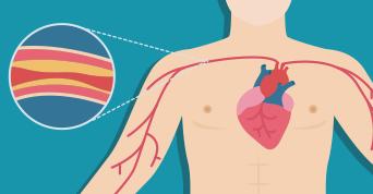 enfermedades-cardiovasculares-en-ninos-colesterol-elevado