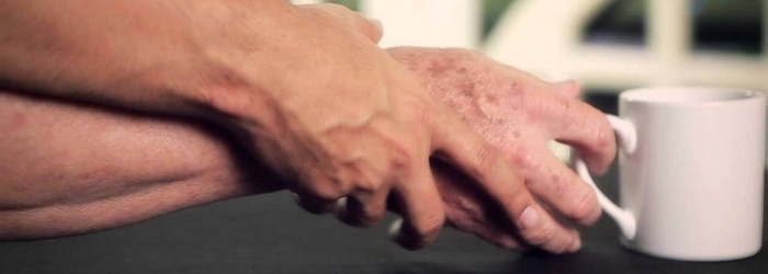 parkinson-diagnostico