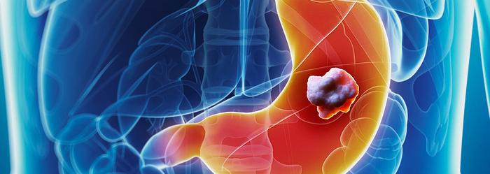 estudio_de_resonancia_magnetica_cancer_de_estomago.png