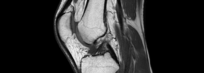 Todo sobre sobre el estudio de resonancia magnética de rodilla